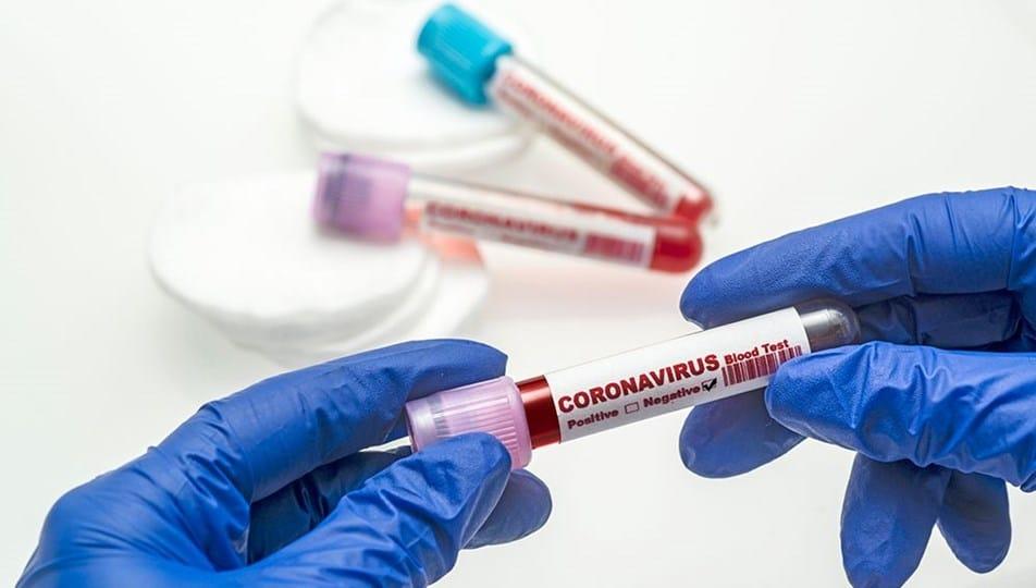 corona virus gunluk vakalar